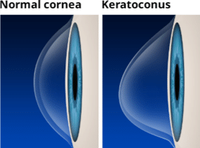 Keratoconus Treatment Riverdale